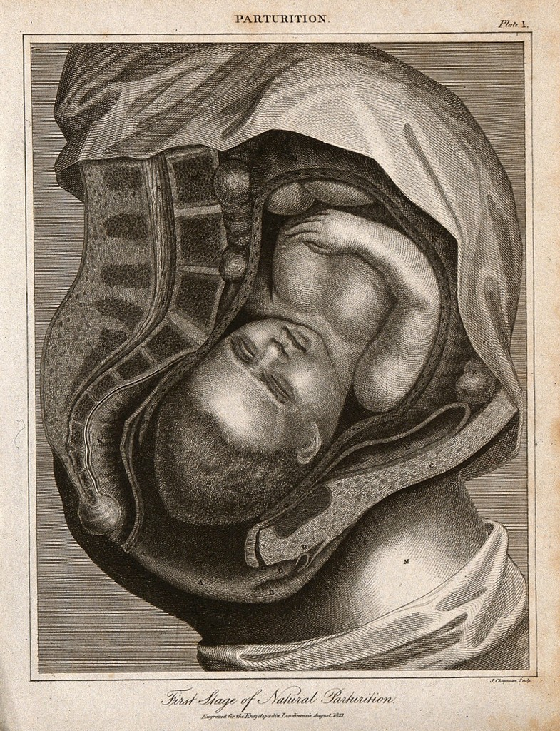 Engraved black-and-white illustration shows a cross-section of a woman's torso, with a curled-up fetus visible inside the uterus